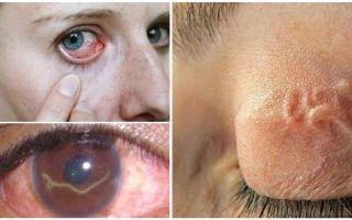 Глисты в глазах человека – симптомы и лечение, фото