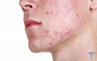 Лечение демодекоза у человека, фото, симптомы и отзывы