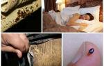 Как избавиться от клопов в диване в домашних условиях