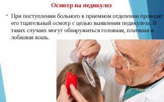 Медицинский персонал проведет проверку на педикулез