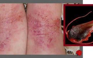 Лямблии у детей – симптомы и лечение, фото