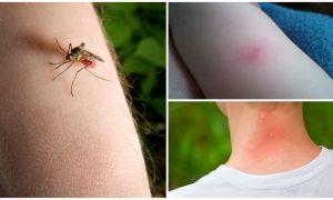 Как отличить укус комара от укуса клопа или клеща