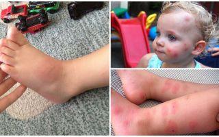 Как и чем лечить укусы комаров у детей