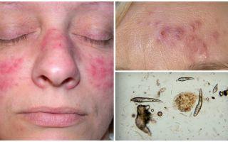 Подкожный клещ на лице – фото, симптомы, лечение