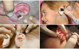 Что делать, если в ухо залетела муха