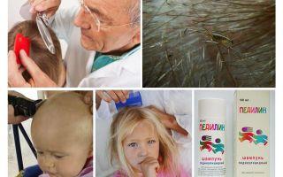 Советы комаровского по лечению вшей у детей