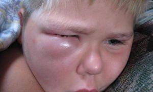Что делать если мошка укусила в глаз или веко