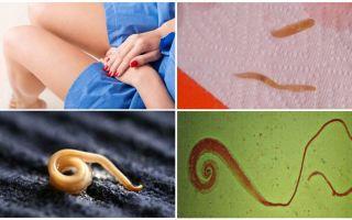 Глисты во влагалище у женщин – гинекология