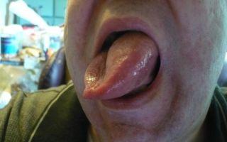 Что делать, если пчела ужалила в губу