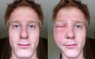 Как снять опухоль, если пчела укусила в глаз