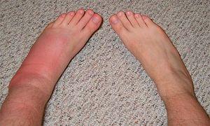 Что делать, если опухла нога после укуса насекомого и как снять отек