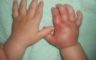 Что делать, если опухла рука от укуса комара у ребенка или взрослого