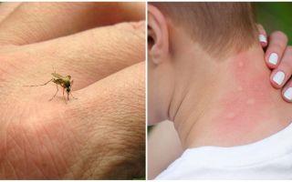 Почему укусы комаров чешутся
