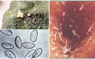 Яйца остриц — фото, описание, при какой температуре погибают