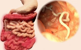 Паразиты в кишечнике: симптомы и чистка