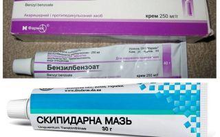 Эффективные мази от вшей и гнид – отзывы и инструкция применения