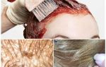 Убивает ли краска для волос вшей и гнид