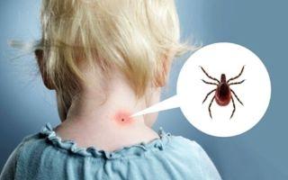 Что делать, если ребенка укусил клещ