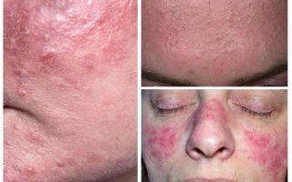 Подкожные вши – фото, симптомы и лечение