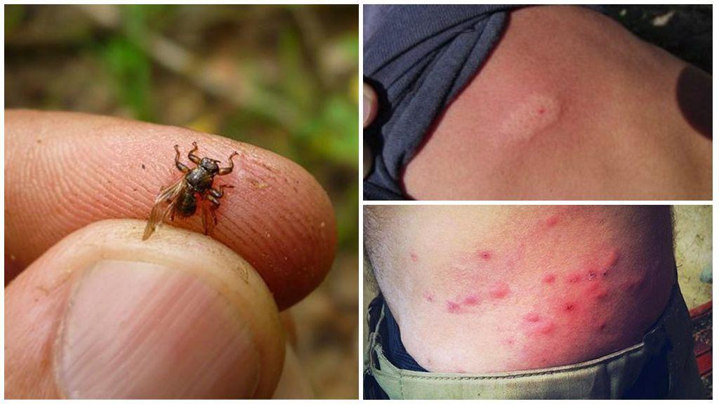 Клещ лосиный - опасный паразит оленьих. Чем опасны лосиные клещи и как защититься от них Оленья кровососка как защититься