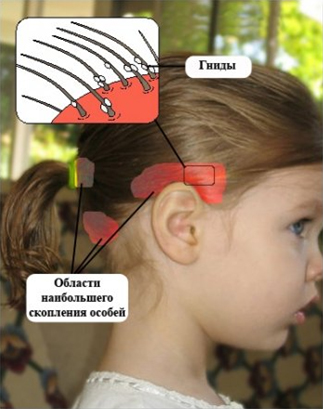 Комаровский вши у детей лекарство