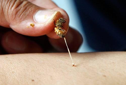Симптомы аллергии на пчел